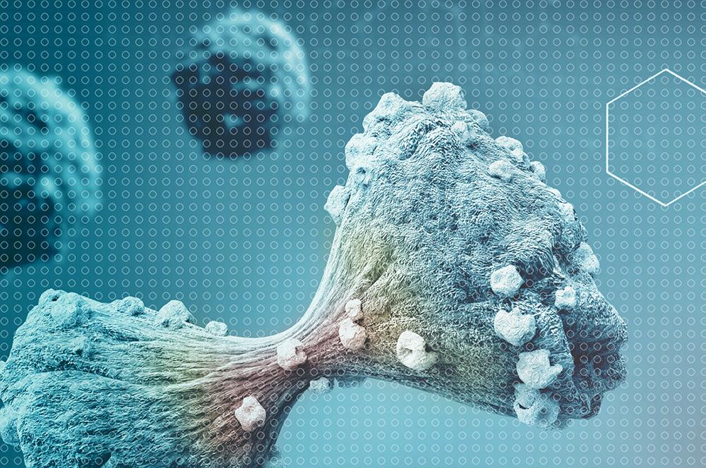 Tumour case study